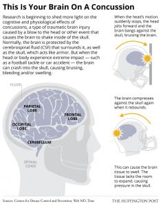 2014_Concussions